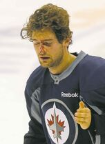T.J. Galiardi thought he might have sustained serious eye damage when the accident happened.
