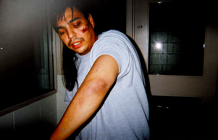 Leon Vermette displays injuries suffered during his arrest by Winnipeg police officers in May 2008.