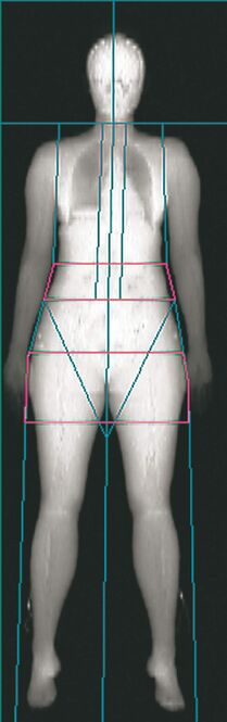 DXA (dual energy X-ray absorptiometry) scans of body composition, with a cross-sectional grid ) used for analysis.