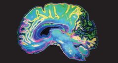 With the click of a mouse, an image appears on the screen, a mix of colours - pink, green, orange, blue and white - all coming together in the unmistakable form of a human brain.