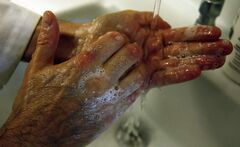 Most people don't wash their hands properly.