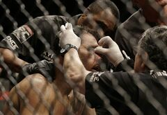 Antonio Rogerio Nogueira, center, is tended to after losing to Anthony Johnson during the first round of a light heavyweight mixed martial arts bout at a UFC event in San Jose, Calif., Saturday, July 26, 2014. (AP Photo/Jeff Chiu)