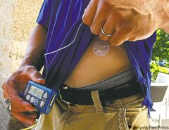 An insulin pump is seen in a file photo.