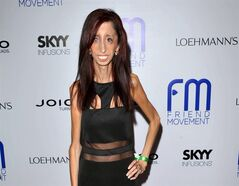 FILE - This July 1, 2013 file photo shows author and motivational speaker Lizzie Velasquez at the Friend Movement Anti-Bullying Benefit Concert at the El Rey Theatre in Los Angeles. Velasquez, who possesses a rare and unknown syndrome that prevents her from gaining weight, is raising funds on Kickstarter through June 1, 2014, for an anti-bulling documentary, titled,