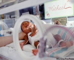 Premature infant affected by fetal alcohol syndrome in an incubator.
