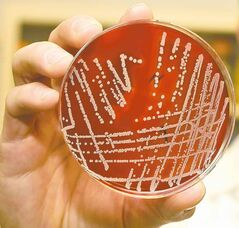 Resistant superbugs are spreading rapidly in Canadian hospitals.