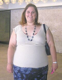 Tammy Ducharme 'before' photo.