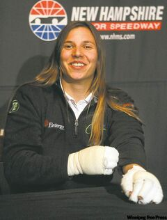 Simona de Silvestro is in good spirits Monday at a Boston restaurant despite her burned hands.