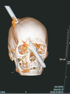 A tomography scan shows the skull of Eduardo Leite pierced by a metal bar. The construction worker survived after the bar fell and smashed through his head.