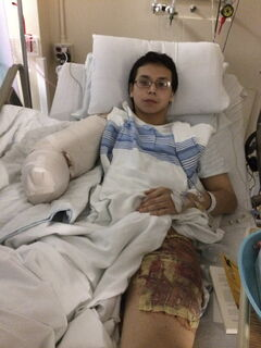 Kiefer Lynxleg rests in a hospital bed after undergoing surgeries on his right arm.