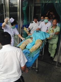 Medical staff move a severely burnt victim of an explosion at an eastern Chinese automotive parts factory from a hospital in the city of Kunshan, Jiangsu Province, to a Shanghai hospital, Saturday, Aug. 2, 2014 due to lack of hospital equipment to treat severe burns. Dozens of people were killed Saturday by the explosion at the factory that supplies General Motors, state media reported. (AP Photo) CHINA OUT