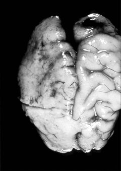 In very extreme cases, a brain affected by alcohol can look almost mushy.