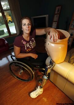 Janis Ollson shows off the prosthetic leg she uses at her home.