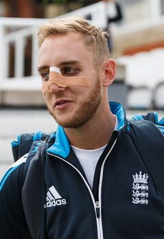 England's Stuart Broad walks out for the start of the nets session with injuries from a ball hitting his face, at The Kia Oval, London, Thursday, Aug. 14, 2014. The fifth and final test match of the series against England begins at the Oval on Friday, with England leading the series 2-1. (AP Photo/PA, John Walton) UNITED KINGDOM OUT NO SALES NO ARCHIVE
