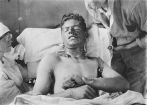 Unidentified Canadian soldier with burns caused by mustard gas gets treatment. THE CANADIAN PRESS/HO, Library and Archives Canada