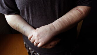 Elizabeth Kennedy's arms show evidence of a long history of mental illness.