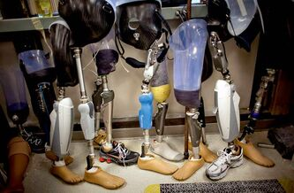 Prosthetic legs await repair at the Walter Reed National Military Medical Center.