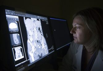 Dr. Rachel Kupets, surgical oncologist for Sunnybrook's Odette Cancer Centre Gynaecology Cancer Care team, looks at a CT scan in Toronto on Wednesday, June 1, 2011. Researchers at the centre have found that at least 26 per cent of women across the country, who have abnormal Pap test results, are not receiving proper follow-up care.THE CANADIAN PRESS/Nathan Denette