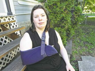 Cyclist Erin Essery suffered a broken arm after being hit by a car.