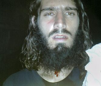 FILE - This undated file photo downloaded from a file-sharing site linked from the Twitter account of Omar Hammami, a most-wanted American jihadi in Somalia, purports to show Hammami with blood on his neck and shirt Thursday, April 26, 2013 following what he labeled an assassination attempt late Thursday as he was sitting in a tea shop. Hammami, a jihadi from Alabama whose nom de guerre is Abu Mansoor Al-Amriki, or