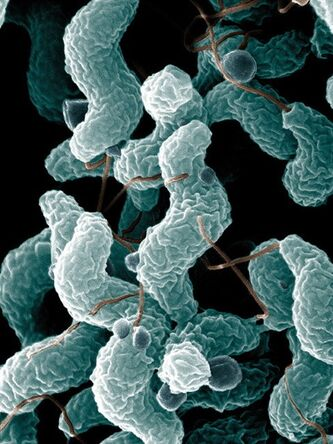 Campylobacter bacteria are shown in a Agricultural Research Service image. THE CANADIAN PRESS/HO, USDA