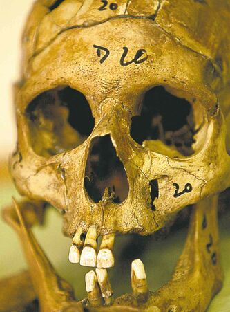 A skull from Argentina's 'dirty war.'