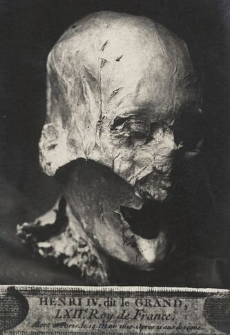 This photo dated Thursday Dec. 16, 2010 and provided by Galaxie Presse shows what is believed to be the head of former French King Henry IV pictured in the 1930s. A 400-year-old skull that French researchers believe was the head of celebrated King Henri IV was squirreled away for decades in the attic of a now-retired public servant, and now has been handed over to one of his Bourbon dynasty descendants. (AP Photo/Galaxie Presse) NO SALES