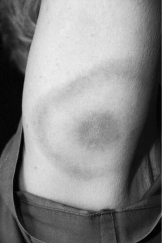 A patient exhibits the bull's-eye rash on the upper arm.