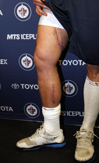 Injured Jets defenceman  Zach Redmond shows the scar on his upper leg where his femoral artery was cut by a skate blade. The lower scar is one of two incisions doctors made to relieve swelling in his leg.