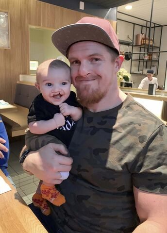 Adam Bighill and his son, Beau, were both born with a bilateral cleft lip and palate. (Supplied photo)