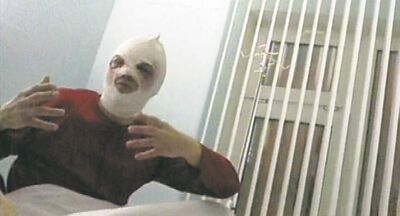 Sergei Filin gestures in a Moscow hospital Friday after having acid thrown in his face.
