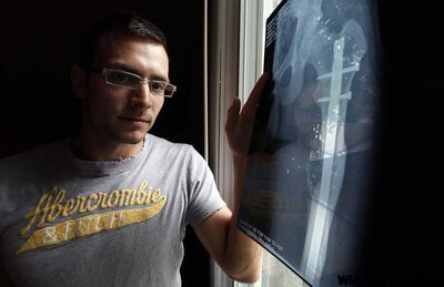 Jayson Nickol had his femur shattered two years ago by an insurgent's AK-47 bullet in Afghanistan.