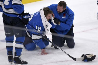 Bryan Little had just skated behind the New Jersey net when he was hit by a rising puck off the stick of Nikolaj Ehlers in the third period Tuesday. </p>