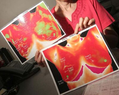 A local survivor of breast cancer dismisses thermographic screening for cancer as 'bunk.'