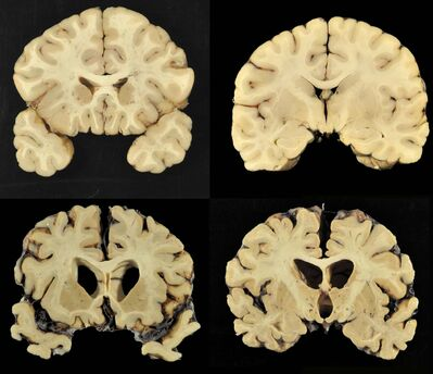 This combination of photos provided by Boston University shows sections from a normal brain, top, and from the brain of former University of Texas football player Greg Ploetz, bottom, in stage IV of chronic traumatic encephalopathy. According to a report released on Tuesday, July 25, 2017 by the Journal of the American Medical Association, research on the brains of 202 former football players has confirmed what many feared in life: evidence of chronic traumatic encephalopathy, or CTE, a devastating disease in nearly all the samples, from athletes in the NFL, college and even high school.
