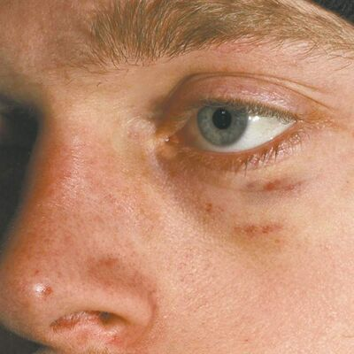 'Cyril,' a 24-year-old Winnipeg cyclist who says 'Moe the Motorist' punched him in the eye in a traffic dispute last April, shows the result. Though 'Cyril' complained to police, they charged him, not 'Moe.'