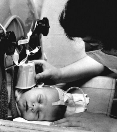 A nurse checks in on a young child hooked up to a respirator.</p></p>