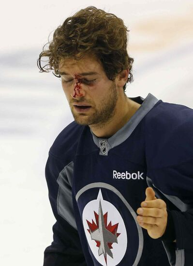 TJ Galiardi took a puck near the eye in Friday morning's first session and head coach Paul Maurice said he was off to see a specialist in the afternoon.