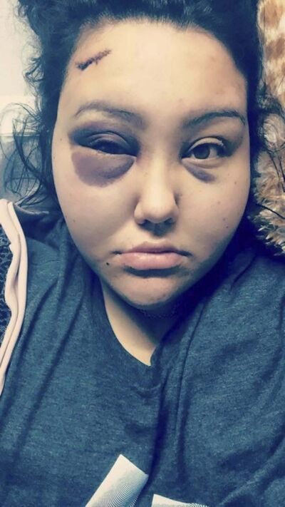 SUPPLIED</p><p>Jackie Healey, 23 &mdash; was fulfilling her practicum requirements for her diploma in child and youth care from Red River College when she and a support worker were beaten with a baseball bat and pool balls stuffed in a sock. </p>