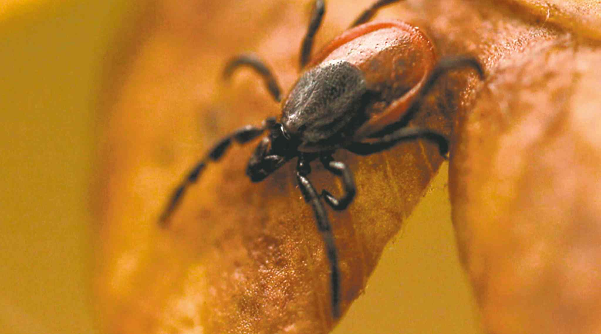 Experts are in agreement deer ticks cause Lyme disease.