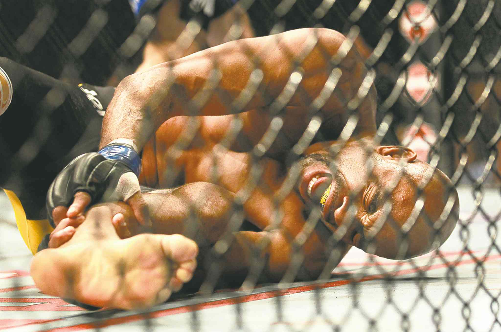 Anderson Silva was dominated by Chris Weidman before breaking his leg during the fight's second round.