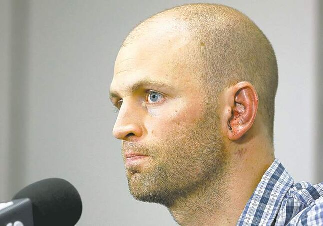 Blue Jays pitcher J.A. Happ shows off his wounds at Wednesday's press conference.