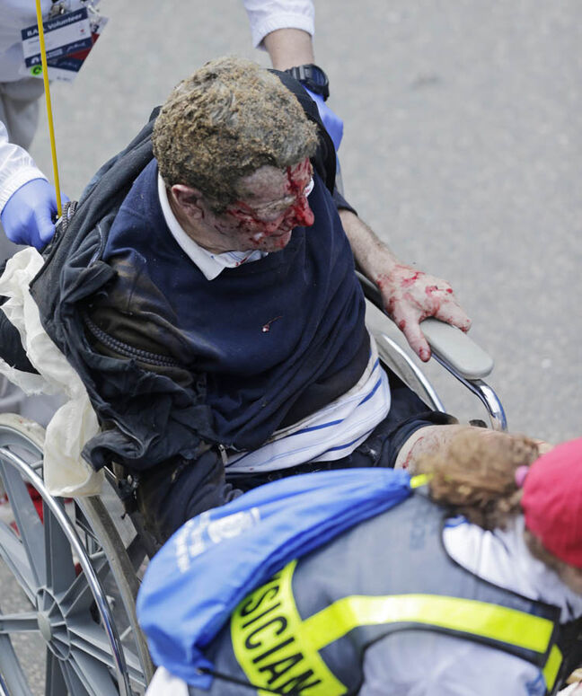 Medical workers aid an injured man at the finish line of the 2013 Boston Marathon following an explosion there Monday, April 15, 2013 in Boston. Two explosions shattered the euphoria at the finish line on Monday, sending authorities out on the course to carry off the injured while the stragglers were rerouted away from the smoking site of the blasts.