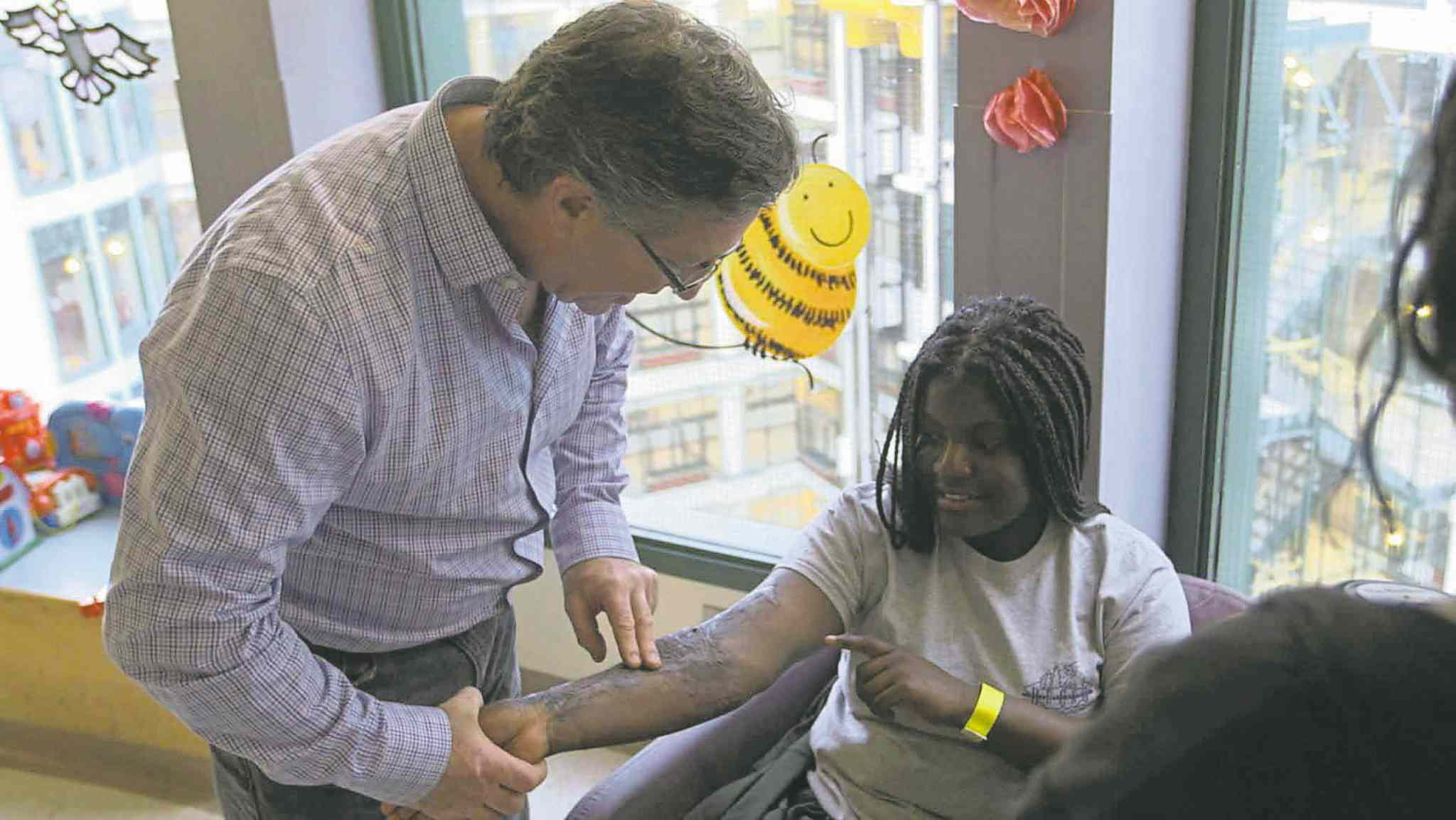 CBCLeft, Dr. Joel Fish, medical  director of the burn unit at Toronto�s Hospital for Sick Children, examines a 17-year-old  patient�s scars.