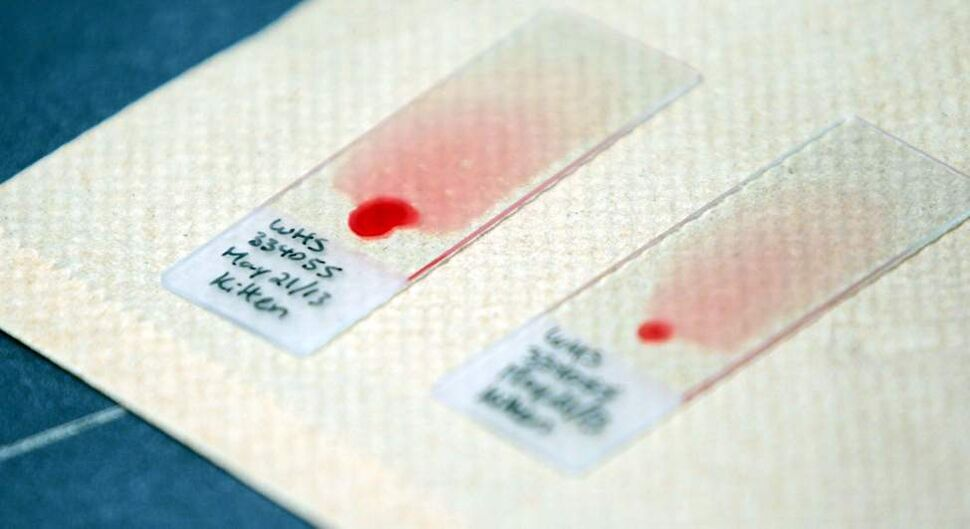 Blood samples testing for various disorders.  (Boris Minkevich/Winnipeg Free Press)