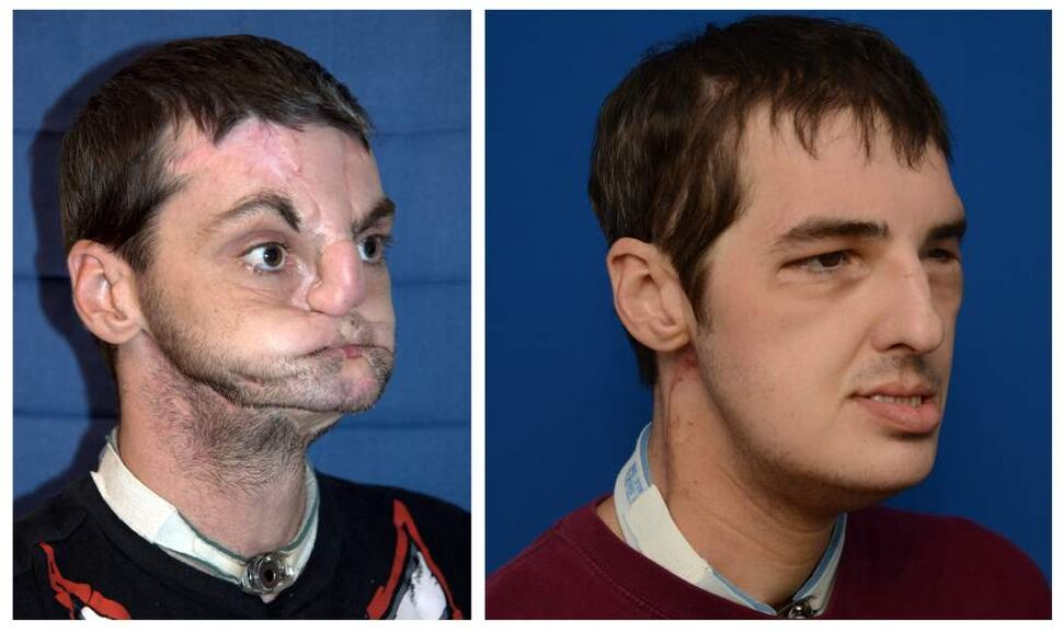 In photos provided by the University of Maryland Medical Center, face transplant recipient Richard Lee Norris, the recipient of the most extensive face transplant performed to date, is seen a photo taken before the face transplant, left, and in a photo made 114 days after the transplant was performed. Norris, 37, of Hillsville, Va. received the transplant in a 36-hour operation in March 2012. It included the replacement of both jaws, teeth, tongue, and skin and underlying nerve and muscle tissue from scalp to neck. Norris was injured in a gun accident in 1997. (AP Photo/ University of Maryland Medical Center)