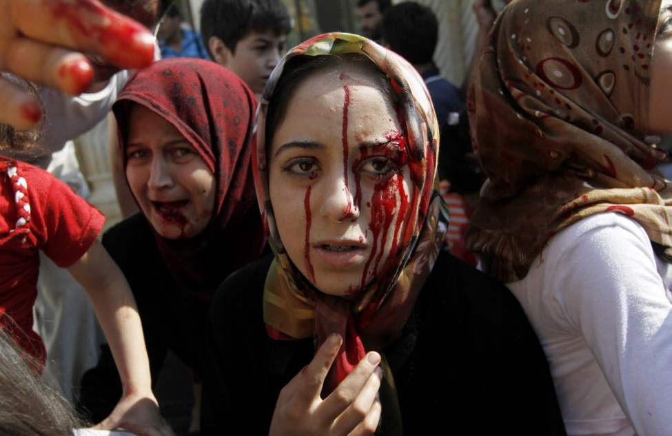 Injured Syrian women arrive at a field hospital after an air strike hit their homes in the town of Azaz on the outskirts of Aleppo. (AP Photo/ Khalil Hamra)