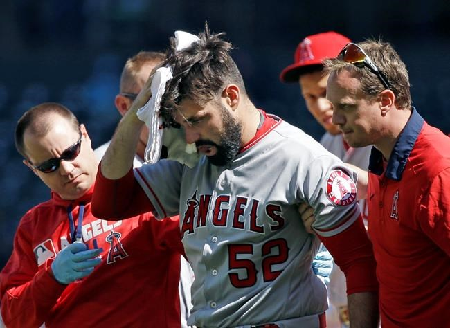 Angels' Matt Shoemaker leaves after being hit by line drive