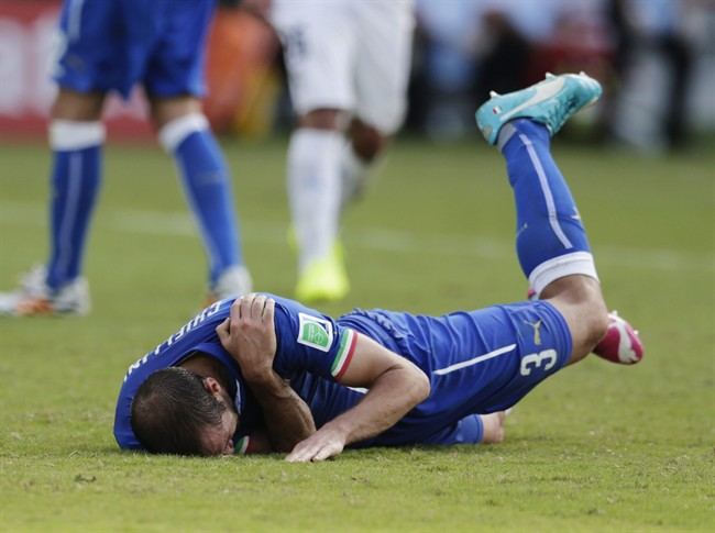 Italy's Giorgio Chiellini holds his shoulder after Uruguay's Luis Suarez ran into it with his teeth during the group D World Cup soccer match between Italy and Uruguay at the Arena das Dunas in Natal, Brazil, Tuesday, June 24, 2014. (AP Photo/Petr David Josek)