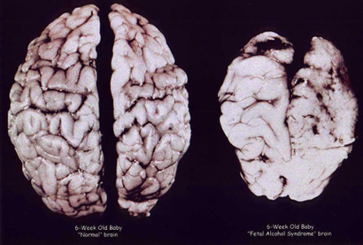 A normal brain, left, and a brain severely affected by alcohol in the womb.